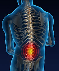 Spinal-Injury-Compensation