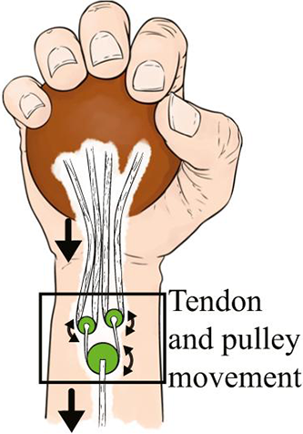 tendon-pulley