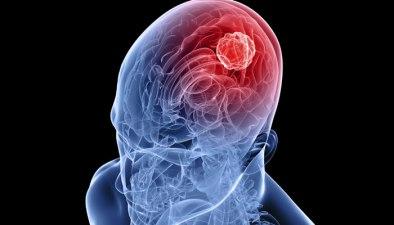 289021-brain-tumor