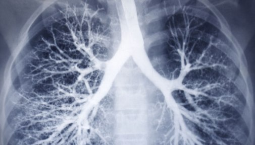 292978-lungs
