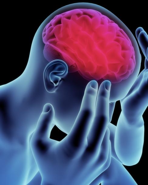 CogniFit Mild Cognitive Impairment