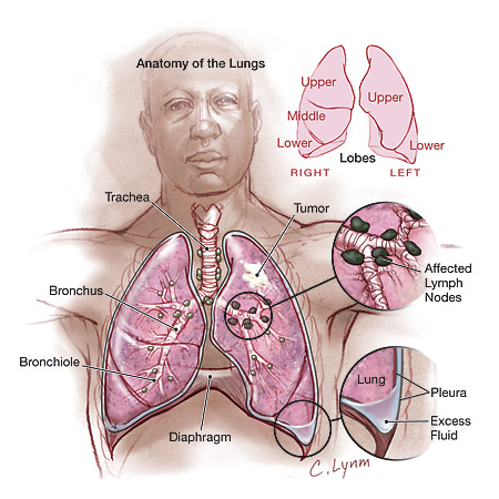 alternative-lung-cancer-treatment