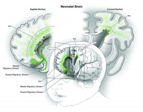 neonatal-brain