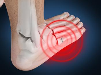 a-jones-fracture